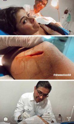 Paulina Peña sufrió accidente